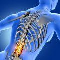 dolor parte baja columna 6 consejos para prevenir y mejorar los dolores de espalda